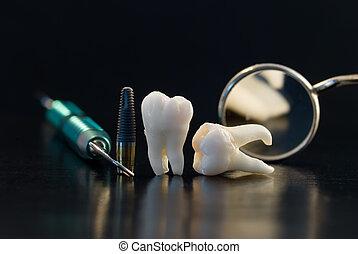 titan, zubní, vštípit