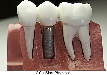Zabalený zubní implantát